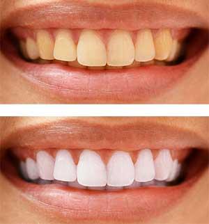 Делаем зубы на фото белыми